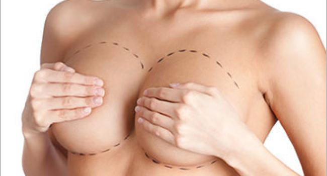 Подтяжка груди (мастопексия)